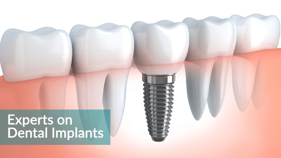 Dental Implants for your Hollywood Smile
