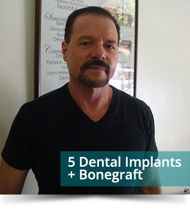 Dental Testimonials: Ellison Williams - 5 Dental Implants
