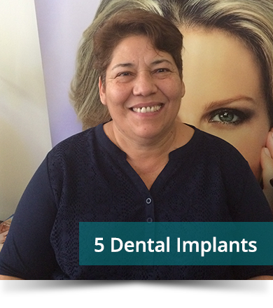 Dental Testimonials: Luz Romero - 5 Dental Implants