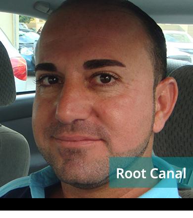 Dental Testimonials: Rony Shamoon - Root Canal