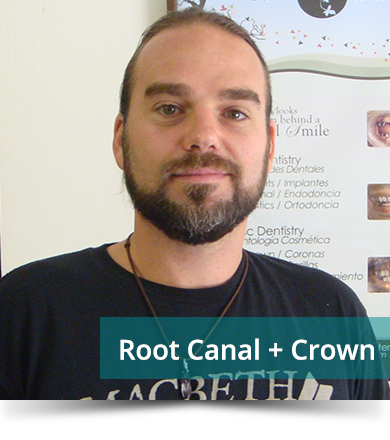 Dental Testimonials: Simon Melnyk - Root Canal
