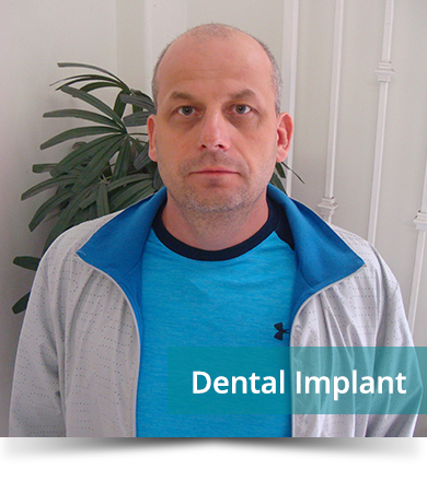 Dental Testimonials: Yuri Berdnyk - Dental Implant