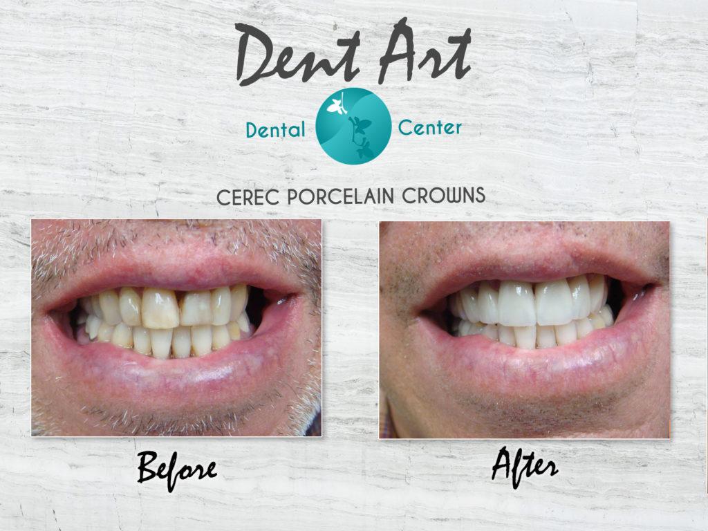 Dental Crowns, Porcelain Crowns, CEREC™ Crowns