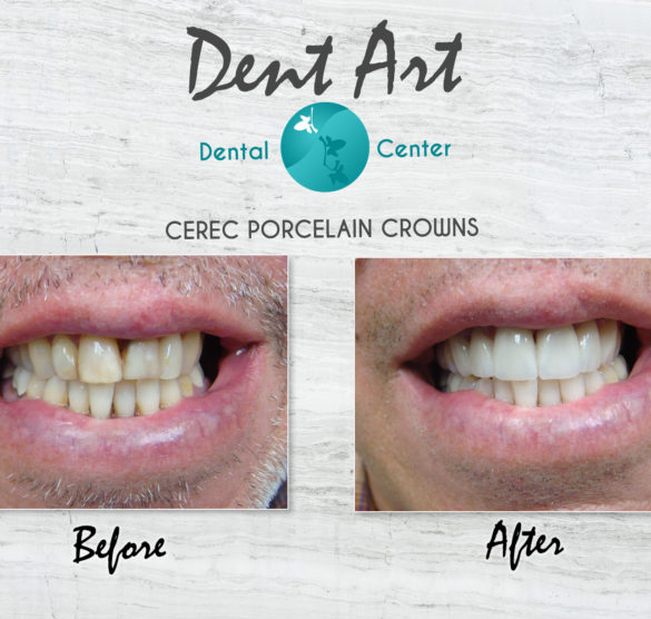 Pocelain Crowns Before and After