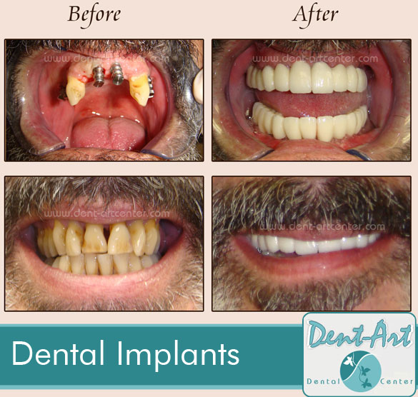 Full Mouth Restoration / Dental Implants and Crowns