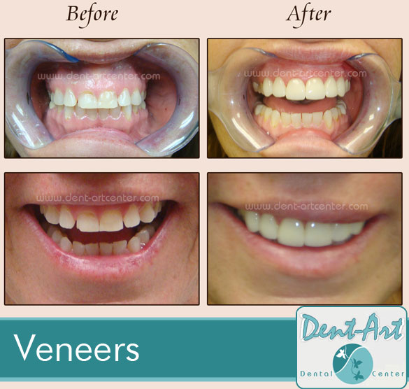 veneers-before-after1