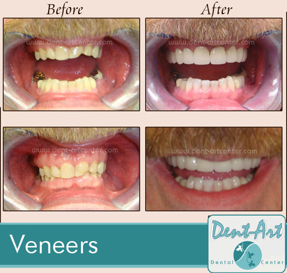 veneers-before-after10