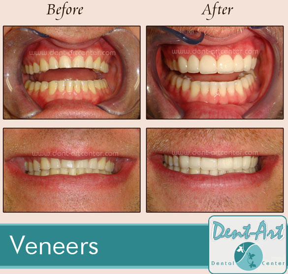veneers-before-after3
