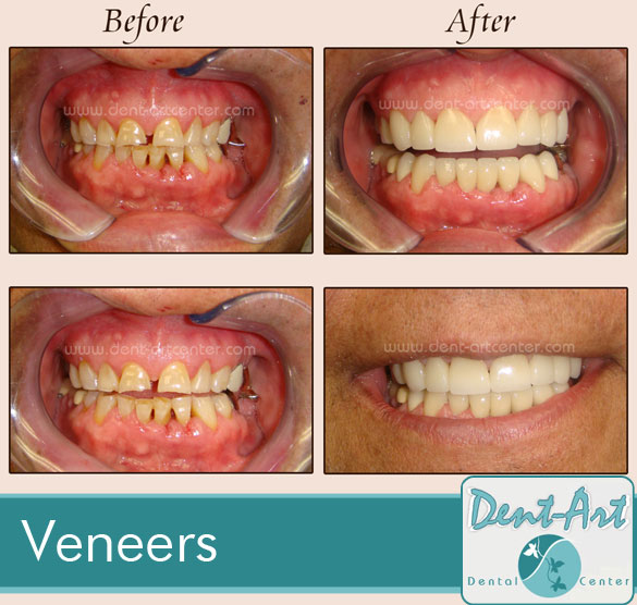 veneers-before-after4