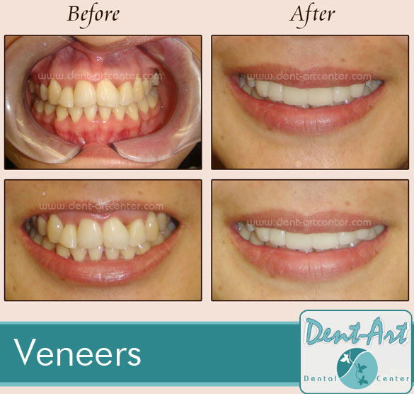 veneers-before-after5
