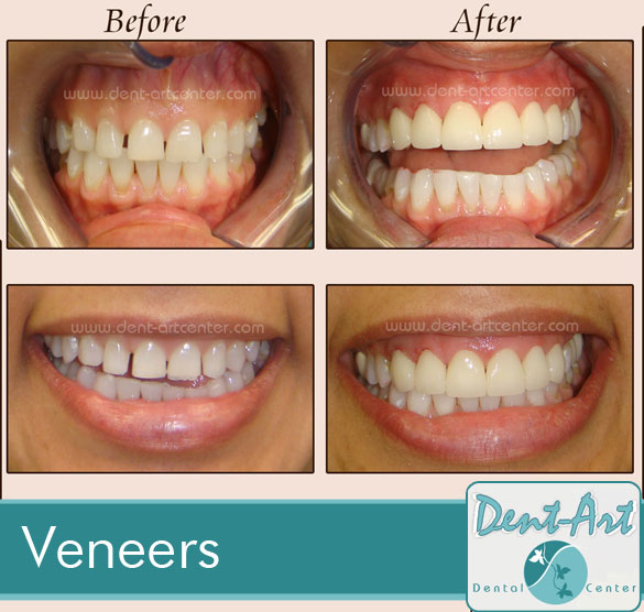 veneers-before-after6