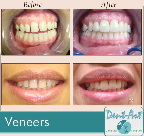 veneers-before-after7
