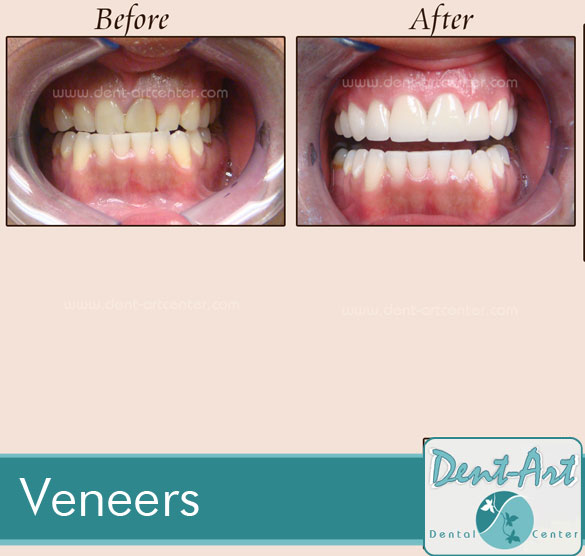 veneers-before-after8