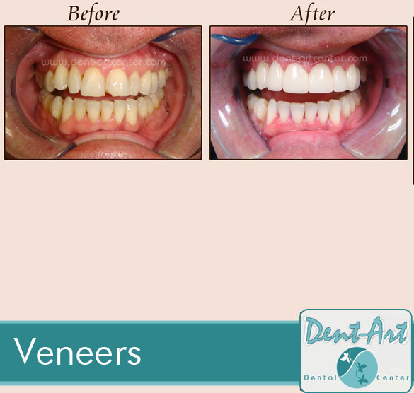 veneers-before-after9