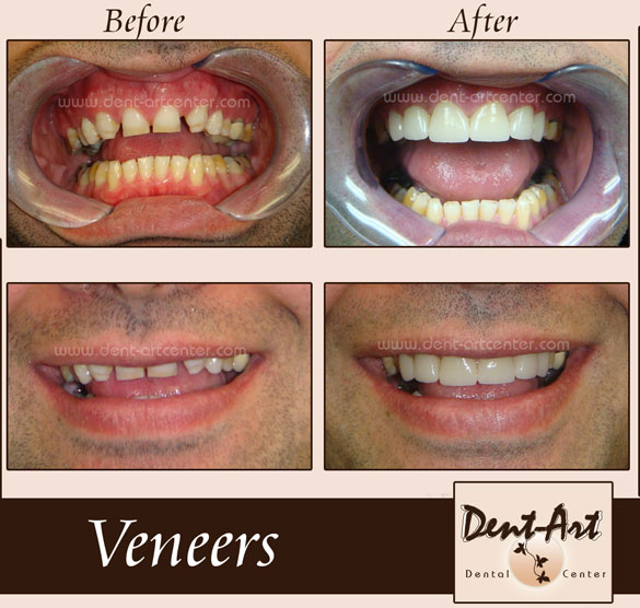 veneers-before-aftera2