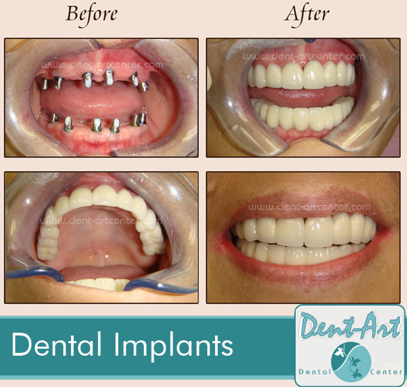 Dental Implants before and after Tijuana Dr Lugo