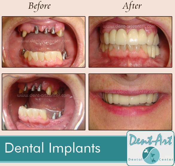 dental-implants4