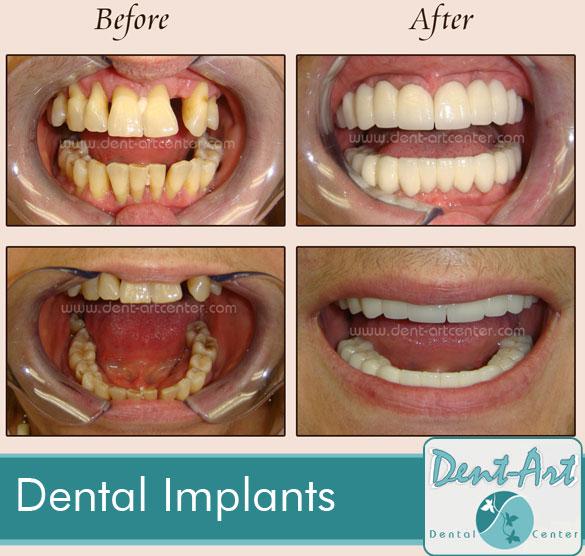 dental-implants6